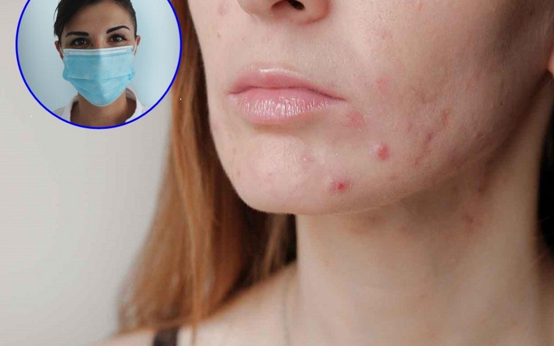 Acne da Mascherina: come prendersi cura del viso ed evitare brufoli e irritazioni